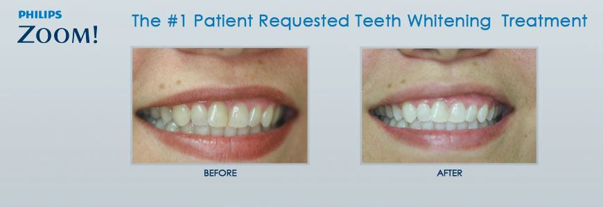 Nutley NJ ZOOM Teeth Whitening